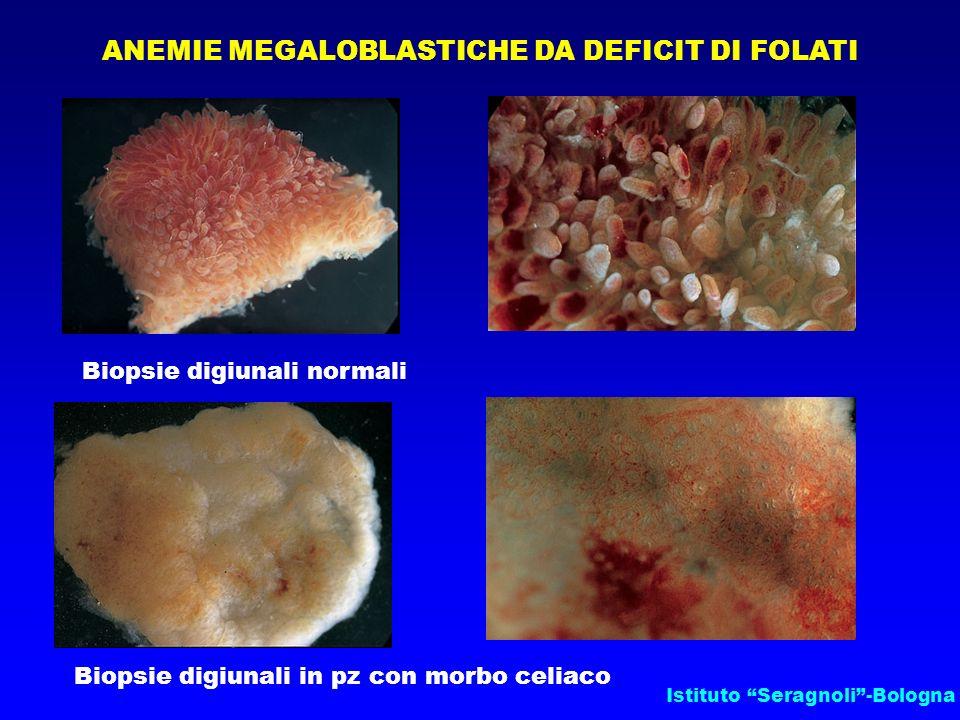 Istituto Seragnoli-Bologna ANEMIE MEGALOBLASTICHE DA DEFICIT DI FOLATI Biopsie digiunali normali Biopsie digiunali in pz con morbo celiaco