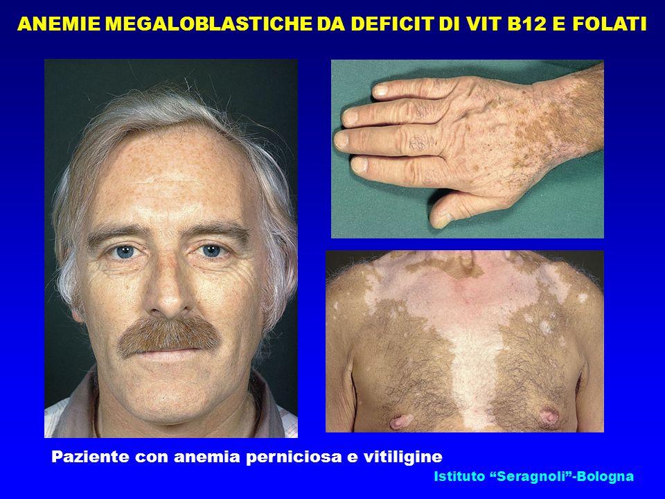 Istituto Seragnoli-Bologna Paziente con anemia perniciosa e vitiligine ANEMIE MEGALOBLASTICHE DA DEFICIT DI VIT B12 E FOLATI