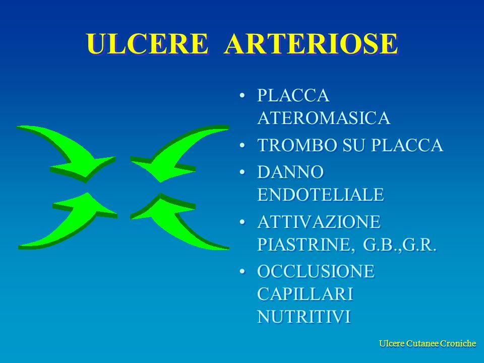 Ulcere Cutanee Croniche ULCERE ARTERIOSE PLACCA ATEROMASICA TROMBO SU PLACCA DANNO ENDOTELIALE ATTIVAZIONE PIASTRINE, G.B.,G.R. OCCLUSIONE CAPILLARI N