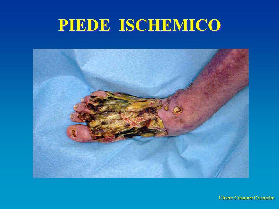 Ulcere Cutanee Croniche PIEDE ISCHEMICO