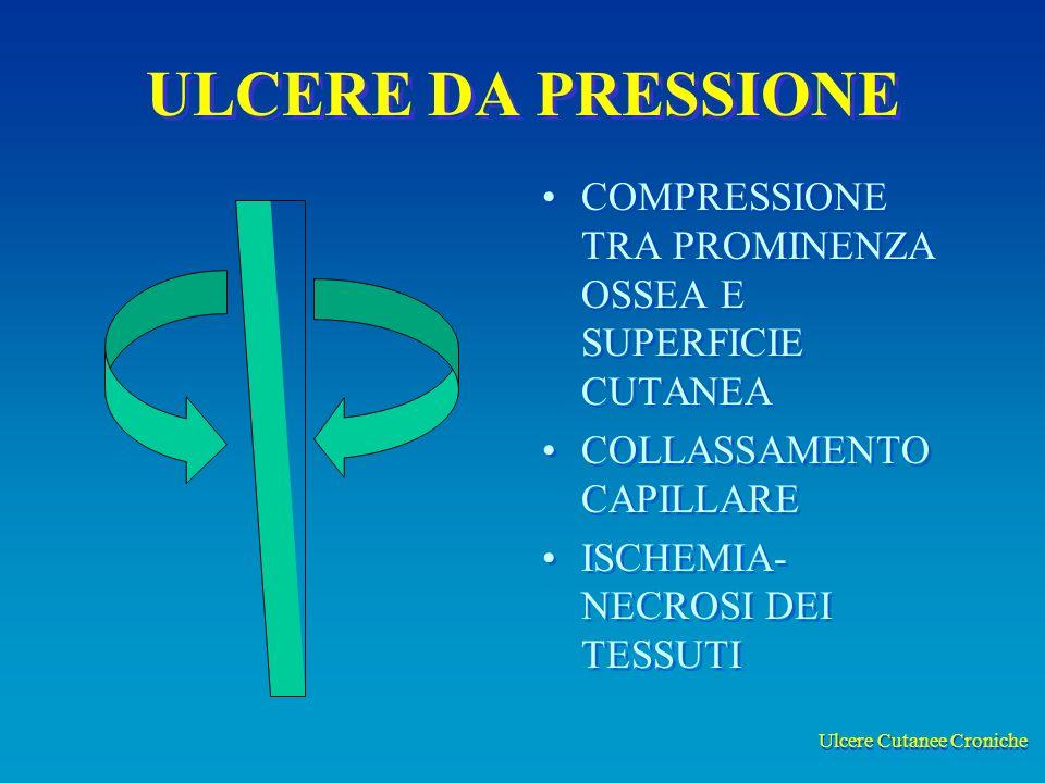 Ulcere Cutanee Croniche ULCERE DA PRESSIONE COMPRESSIONE TRA PROMINENZA OSSEA E SUPERFICIE CUTANEA COLLASSAMENTO CAPILLARE ISCHEMIA- NECROSI DEI TESSUTI