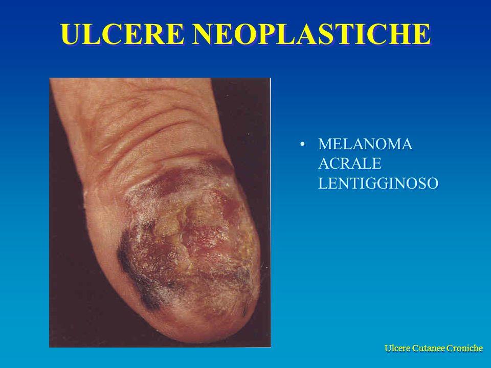 Ulcere Cutanee Croniche ULCERE NEOPLASTICHE MELANOMA ACRALE LENTIGGINOSO