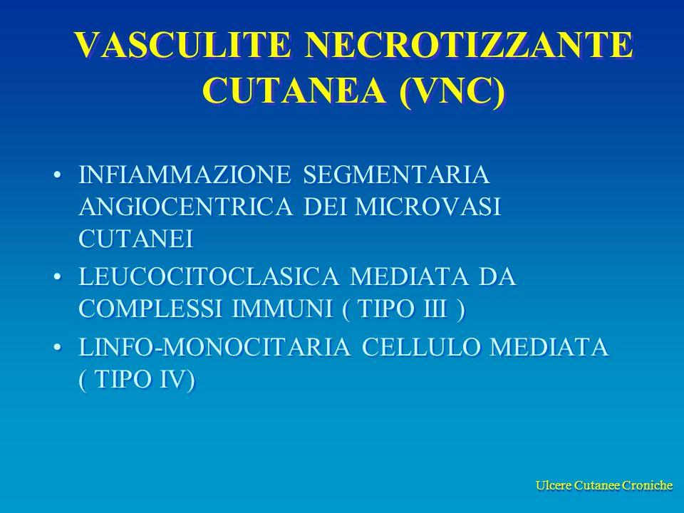Ulcere Cutanee Croniche VASCULITE NECROTIZZANTE CUTANEA (VNC) INFIAMMAZIONE SEGMENTARIA ANGIOCENTRICA DEI MICROVASI CUTANEI LEUCOCITOCLASICA MEDIATA DA COMPLESSI IMMUNI ( TIPO III ) LINFO-MONOCITARIA CELLULO MEDIATA ( TIPO IV) INFIAMMAZIONE SEGMENTARIA ANGIOCENTRICA DEI MICROVASI CUTANEI LEUCOCITOCLASICA MEDIATA DA COMPLESSI IMMUNI ( TIPO III ) LINFO-MONOCITARIA CELLULO MEDIATA ( TIPO IV)