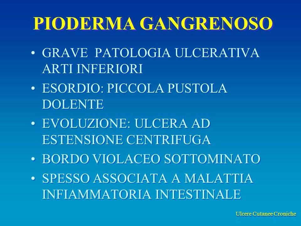 Ulcere Cutanee Croniche PIODERMA GANGRENOSO GRAVE PATOLOGIA ULCERATIVA ARTI INFERIORI ESORDIO: PICCOLA PUSTOLA DOLENTE EVOLUZIONE: ULCERA AD ESTENSIONE CENTRIFUGA BORDO VIOLACEO SOTTOMINATO SPESSO ASSOCIATA A MALATTIA INFIAMMATORIA INTESTINALE GRAVE PATOLOGIA ULCERATIVA ARTI INFERIORI ESORDIO: PICCOLA PUSTOLA DOLENTE EVOLUZIONE: ULCERA AD ESTENSIONE CENTRIFUGA BORDO VIOLACEO SOTTOMINATO SPESSO ASSOCIATA A MALATTIA INFIAMMATORIA INTESTINALE