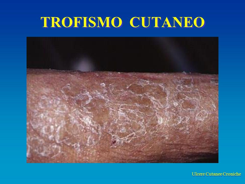 Ulcere Cutanee Croniche TROFISMO CUTANEO