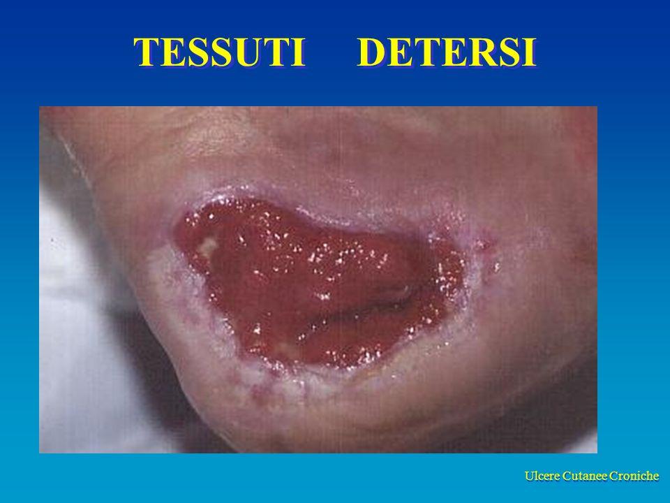 Ulcere Cutanee Croniche TESSUTI DETERSI