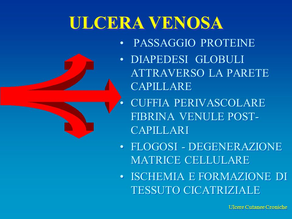 Ulcere Cutanee Croniche ULCERA VENOSA PASSAGGIO PROTEINE DIAPEDESI GLOBULI ATTRAVERSO LA PARETE CAPILLARE CUFFIA PERIVASCOLARE FIBRINA VENULE POST- CAPILLARI FLOGOSI - DEGENERAZIONE MATRICE CELLULARE ISCHEMIA E FORMAZIONE DI TESSUTO CICATRIZIALE