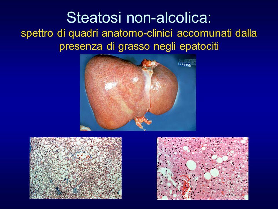 Steatosi non-alcolica: spettro di quadri anatomo-clinici accomunati dalla presenza di grasso negli epatociti