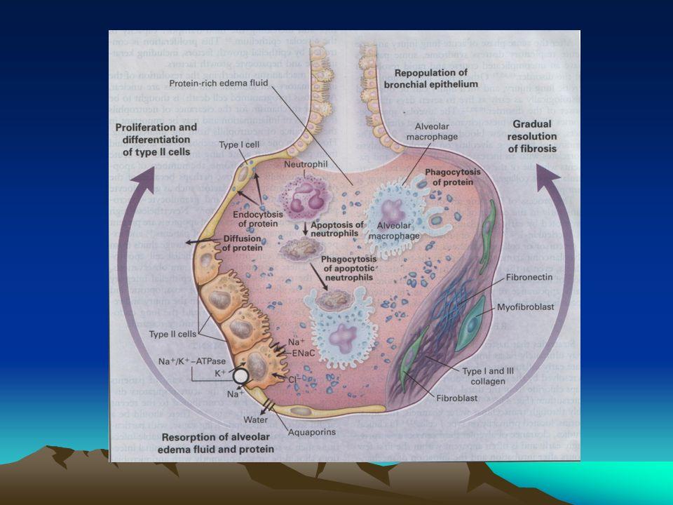 ARDS ANATOMIA PATOLOGICA Infiammazione, edema, atelectasia rapidamente progressiva verso la fibrosi con diffusi infiltrati polmonari. Lo spazio alveol