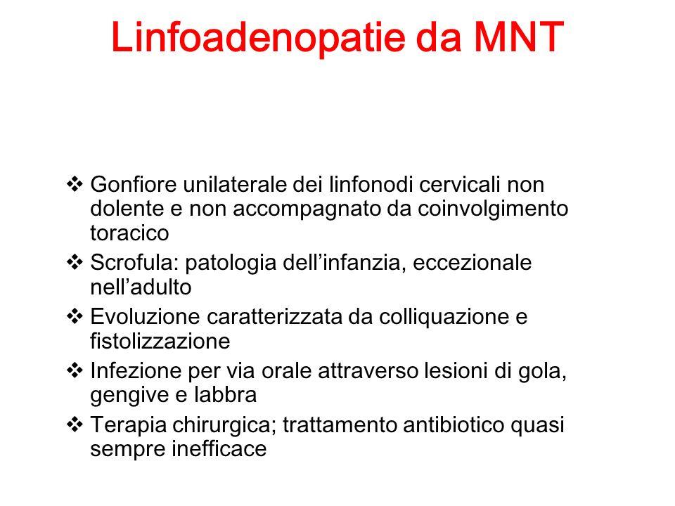 Linfoadenopatie da MNT Gonfiore unilaterale dei linfonodi cervicali non dolente e non accompagnato da coinvolgimento toracico Scrofula: patologia dell