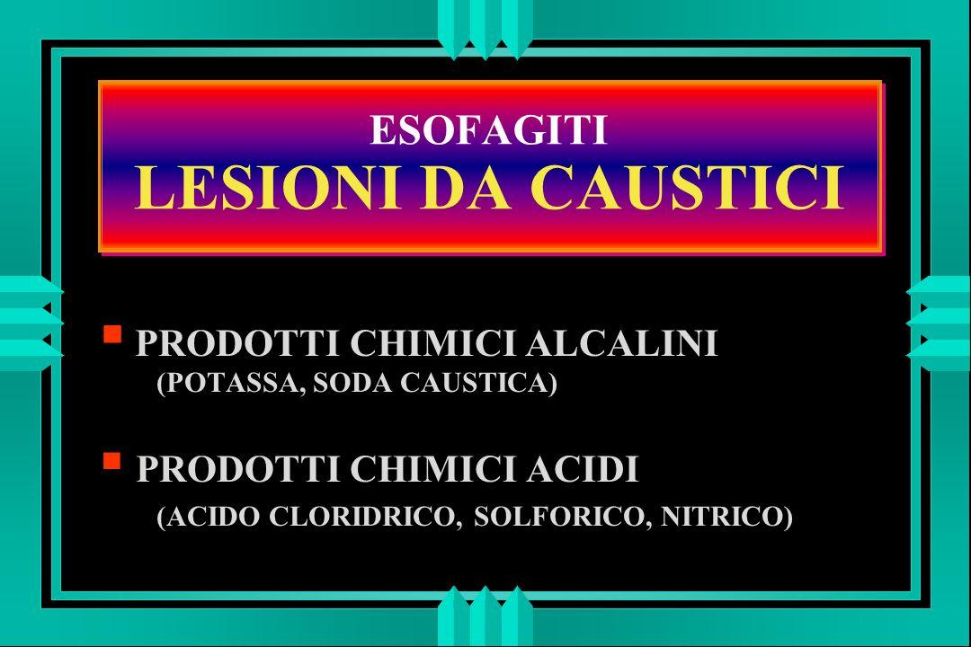ESOFAGITI LESIONI DA CAUSTICI PRODOTTI CHIMICI ALCALINI (POTASSA, SODA CAUSTICA) PRODOTTI CHIMICI ACIDI (ACIDO CLORIDRICO, SOLFORICO, NITRICO)