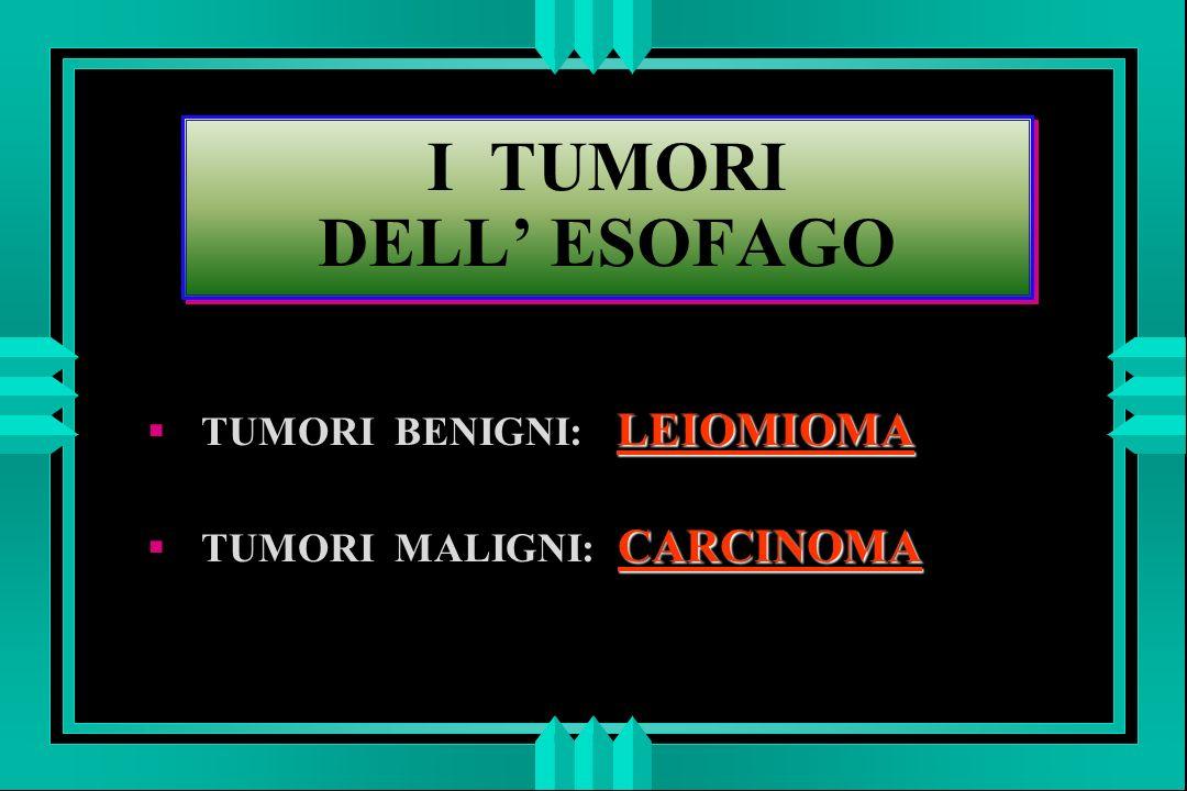 I TUMORI DELL ESOFAGO LEIOMIOMA TUMORI BENIGNI: LEIOMIOMA CARCINOMA TUMORI MALIGNI: CARCINOMA