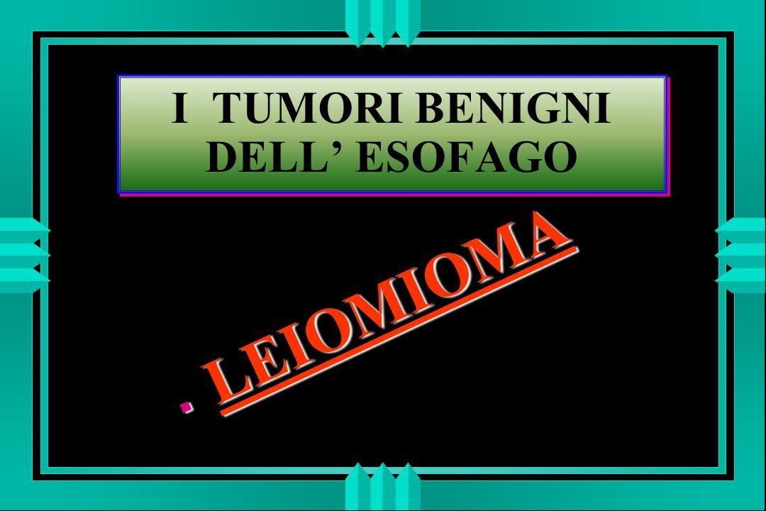 I TUMORI BENIGNI DELL ESOFAGO LEIOMIOMA LEIOMIOMA