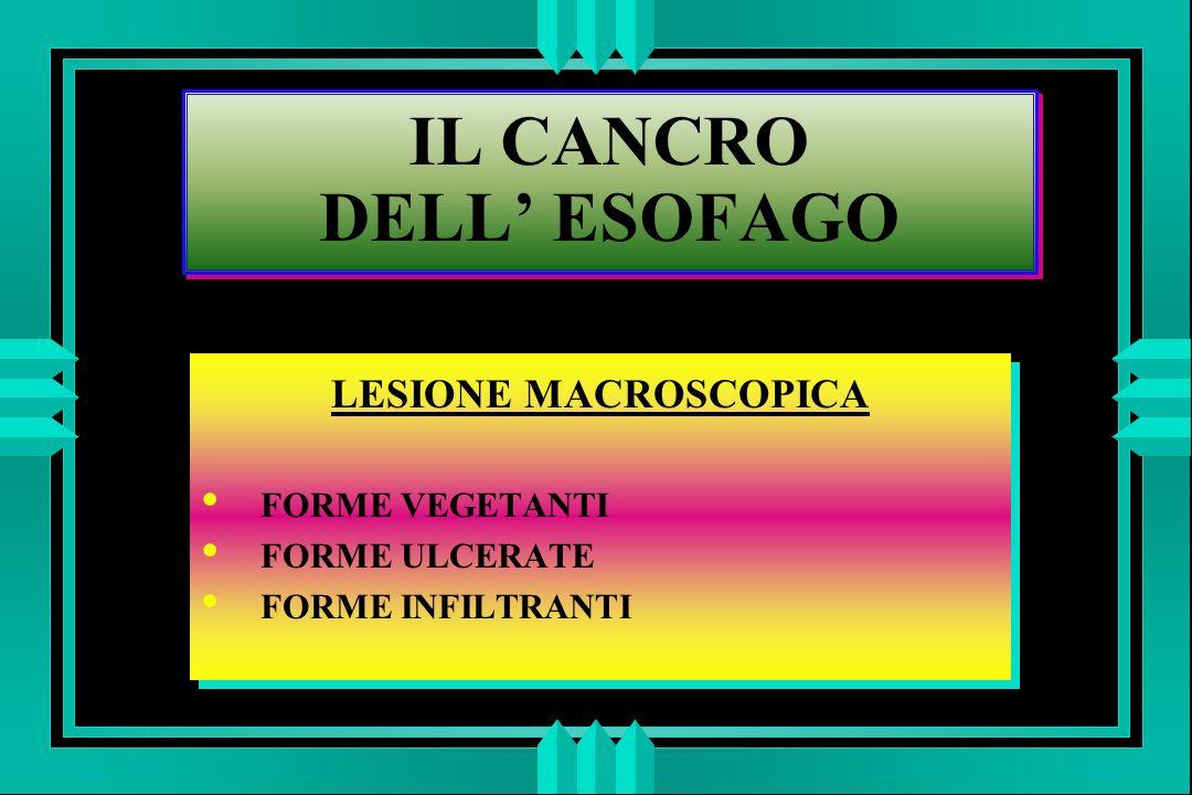 IL CANCRO DELL ESOFAGO LESIONE MACROSCOPICA FORME VEGETANTI FORME ULCERATE FORME INFILTRANTI LESIONE MACROSCOPICA FORME VEGETANTI FORME ULCERATE FORME INFILTRANTI