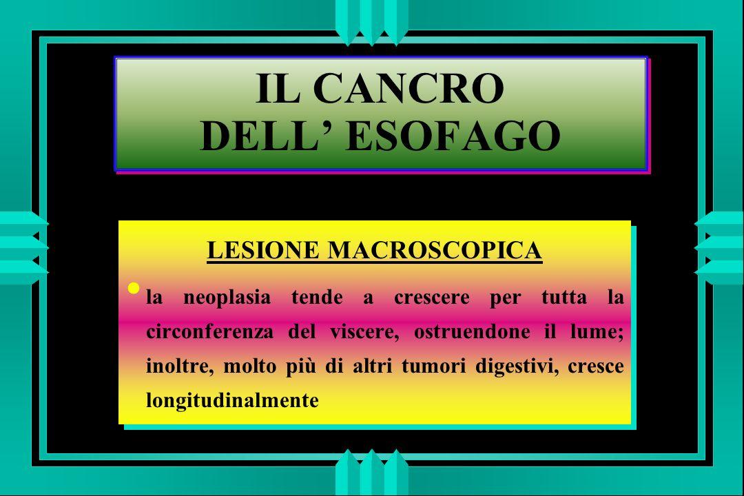 IL CANCRO DELL ESOFAGO LESIONE MACROSCOPICA la neoplasia tende a crescere per tutta la circonferenza del viscere, ostruendone il lume; inoltre, molto più di altri tumori digestivi, cresce longitudinalmente LESIONE MACROSCOPICA la neoplasia tende a crescere per tutta la circonferenza del viscere, ostruendone il lume; inoltre, molto più di altri tumori digestivi, cresce longitudinalmente