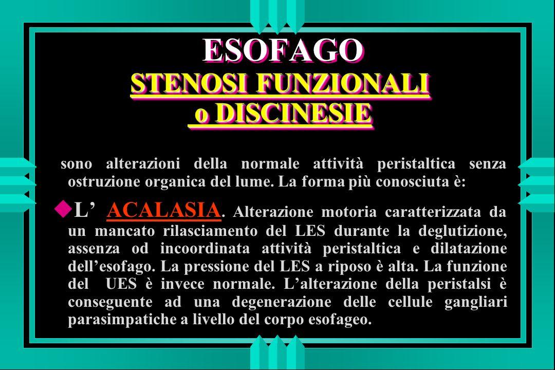 STENOSI FUNZIONALI o DISCINESIE ESOFAGO STENOSI FUNZIONALI o DISCINESIE sono alterazioni della normale attività peristaltica senza ostruzione organica del lume.