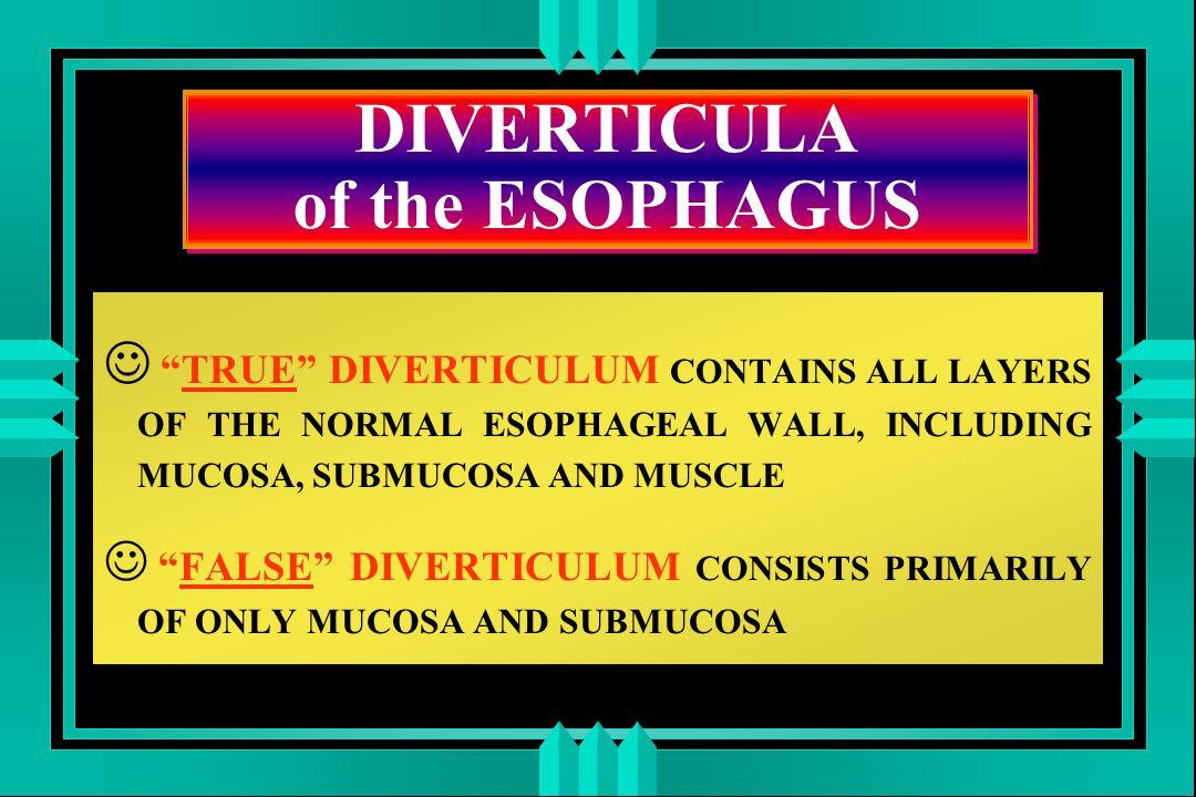 ESOFAGITE da REFLUSSO ACIDO TERAPIA MEDICA anti-H2 (ranitidina), inibitori della pompa protonica (omeprazolo) procinetici (metoclopramide, domperidone, cisapride) protettori della mucosa esofagea consigli dietetici e posturali