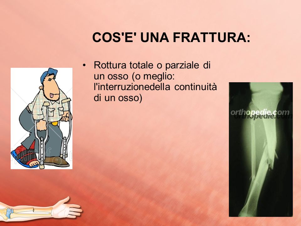 COS'E' UNA FRATTURA: Rottura totale o parziale di un osso (o meglio: l'interruzionedella continuità di un osso)