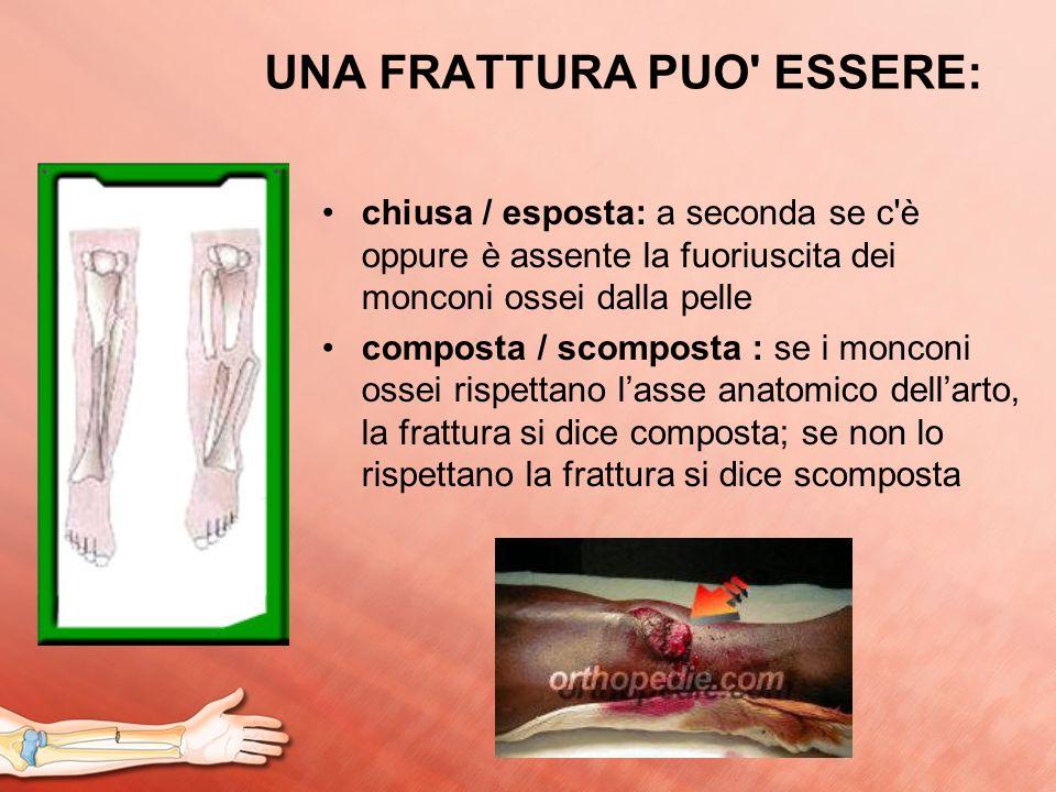 UNA FRATTURA PUO' ESSERE: chiusa / esposta: a seconda se c'è oppure è assente la fuoriuscita dei monconi ossei dalla pelle composta / scomposta : se i