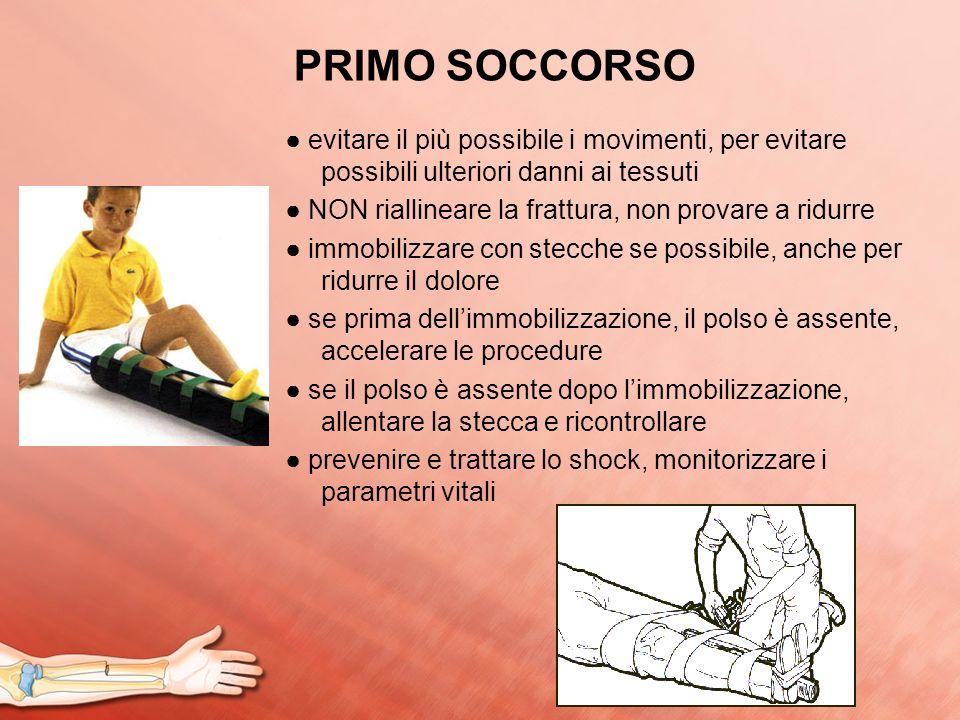 PRIMO SOCCORSO evitare il più possibile i movimenti, per evitare possibili ulteriori danni ai tessuti NON riallineare la frattura, non provare a ridur
