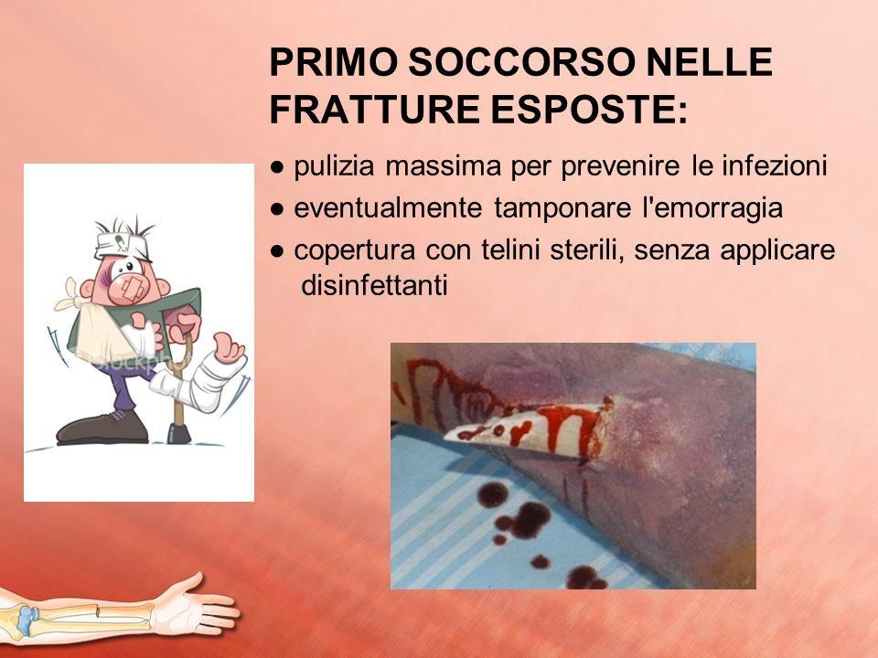 PRIMO SOCCORSO NELLE FRATTURE ESPOSTE: pulizia massima per prevenire le infezioni eventualmente tamponare l'emorragia copertura con telini sterili, se