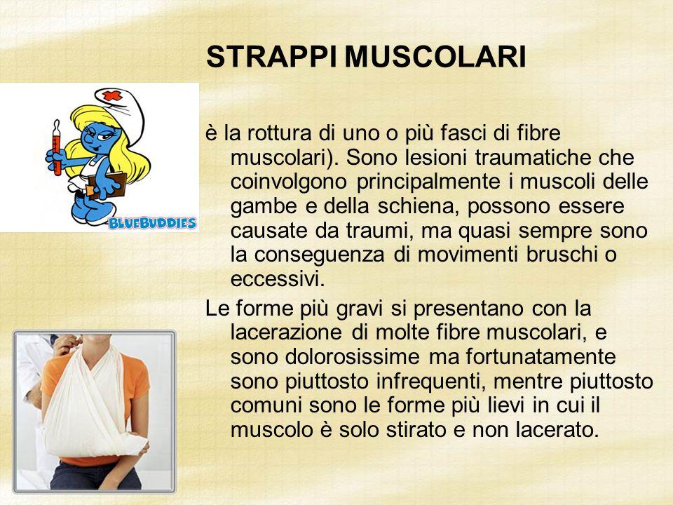 STRAPPI MUSCOLARI è la rottura di uno o più fasci di fibre muscolari). Sono lesioni traumatiche che coinvolgono principalmente i muscoli delle gambe e