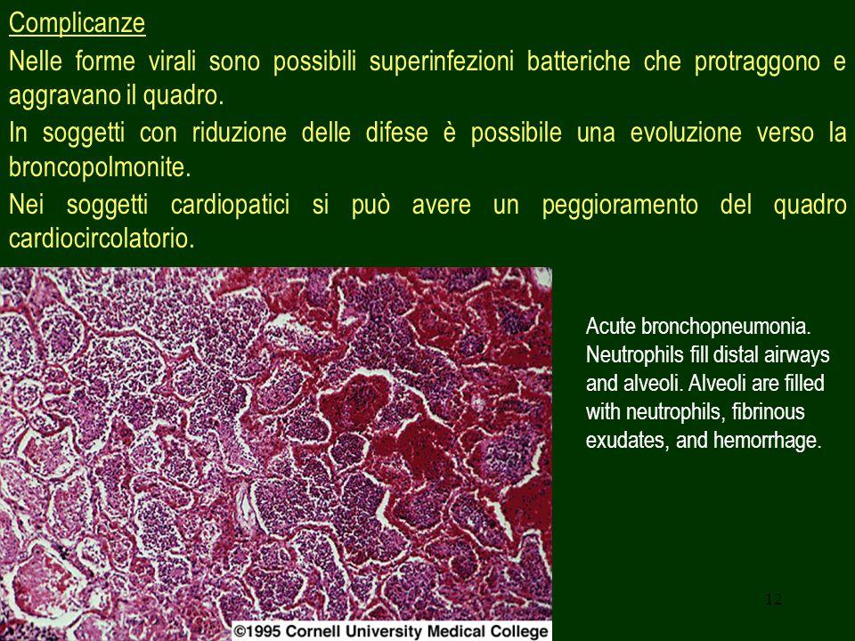 12 Complicanze Nelle forme virali sono possibili superinfezioni batteriche che protraggono e aggravano il quadro. In soggetti con riduzione delle dife
