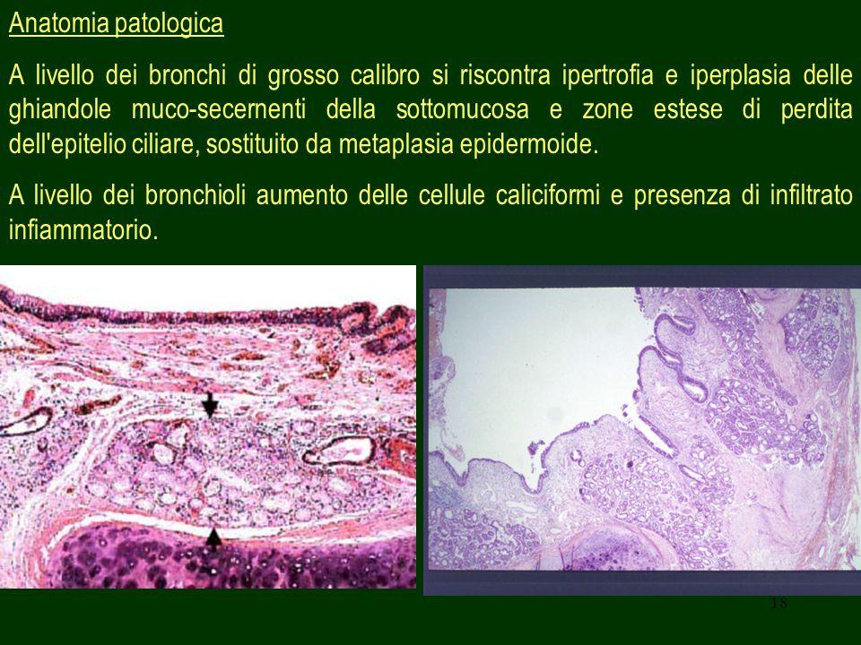 18 Anatomia patologica A livello dei bronchi di grosso calibro si riscontra ipertrofia e iperplasia delle ghiandole muco-secernenti della sottomucosa e zone estese di perdita dell epitelio ciliare, sostituito da metaplasia epidermoide.