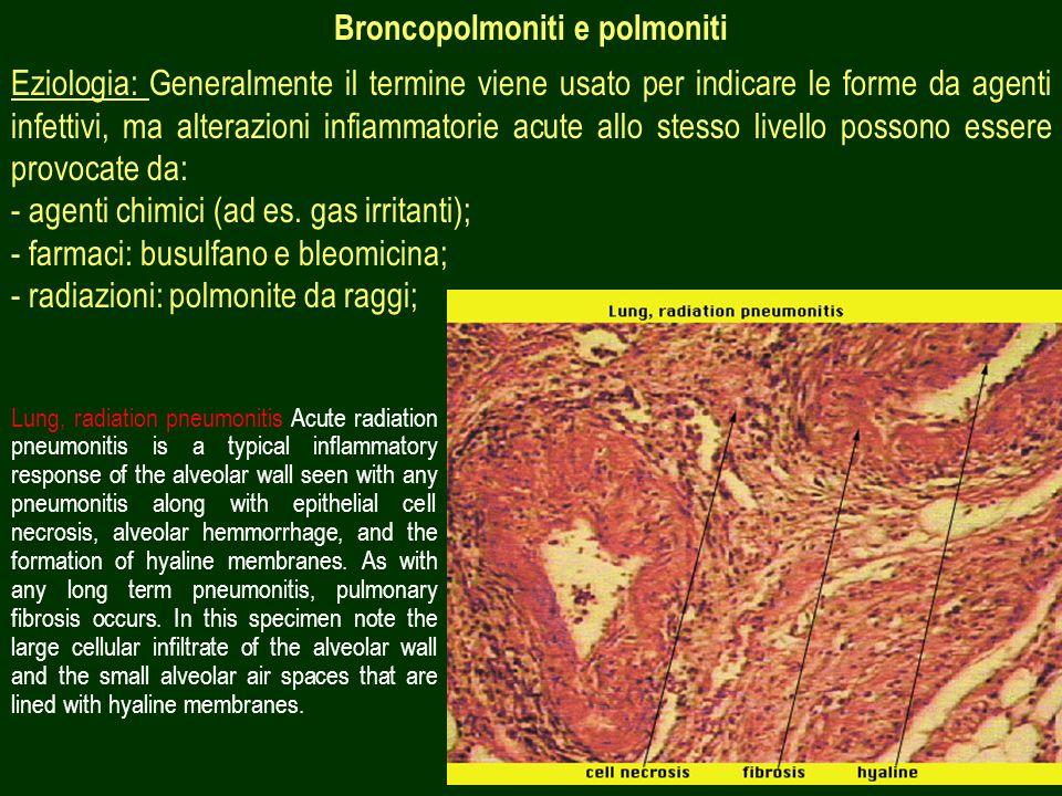 24 Broncopolmoniti e polmoniti Eziologia: Generalmente il termine viene usato per indicare le forme da agenti infettivi, ma alterazioni infiammatorie acute allo stesso livello possono essere provocate da: - agenti chimici (ad es.