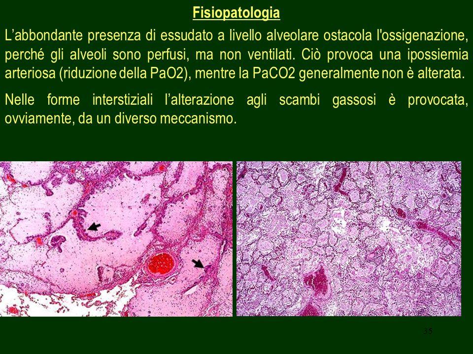 35 Fisiopatologia Labbondante presenza di essudato a livello alveolare ostacola l ossigenazione, perché gli alveoli sono perfusi, ma non ventilati.