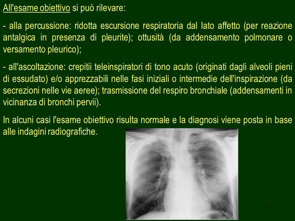 37 All esame obiettivo si può rilevare: - alla percussione: ridotta escursione respiratoria dal Iato affetto (per reazione antalgica in presenza di pleurite); ottusità (da addensamento polmonare o versamento pleurico); - all ascoltazione: crepitii teleinspiratori di tono acuto (originati dagli alveoli pieni di essudato) e/o apprezzabili nelle fasi iniziali o intermedie dell inspirazione (da secrezioni nelle vie aeree); trasmissione del respiro bronchiale (addensamenti in vicinanza di bronchi pervii).