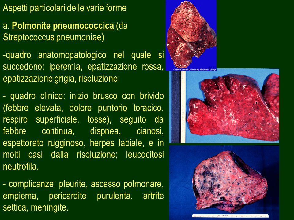 39 Aspetti particolari delle varie forme a. Polmonite pneumococcica (da Streptococcus pneumoniae) -quadro anatomopatologico nel quale si succedono: ip