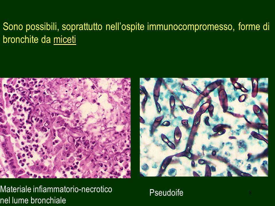 8 miceti Sono possibili, soprattutto nellospite immunocompromesso, forme di bronchite da miceti Pseudoife Materiale infiammatorio-necrotico nel lume bronchiale