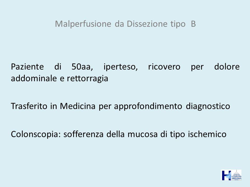 Malperfusione da Dissezione tipo B Paziente di 50aa, iperteso, ricovero per dolore addominale e rettorragia Trasferito in Medicina per approfondimento