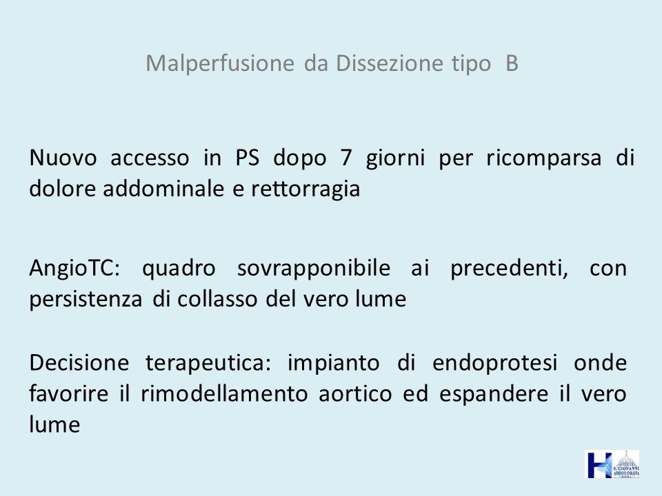 Malperfusione da Dissezione tipo B Nuovo accesso in PS dopo 7 giorni per ricomparsa di dolore addominale e rettorragia AngioTC: quadro sovrapponibile