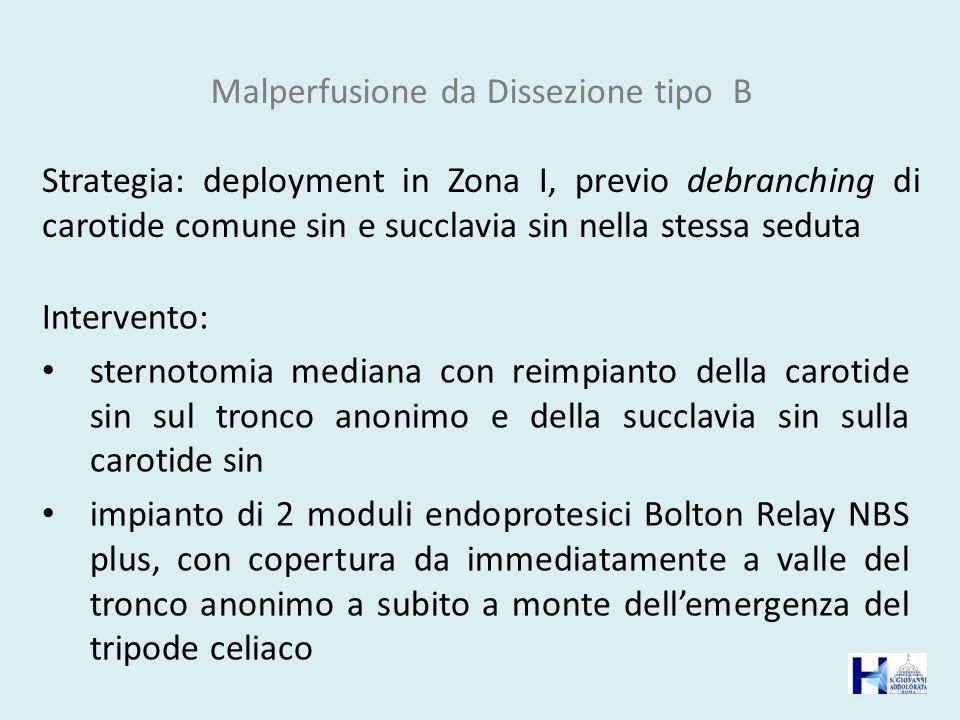 Malperfusione da Dissezione tipo B Strategia: deployment in Zona I, previo debranching di carotide comune sin e succlavia sin nella stessa seduta Inte