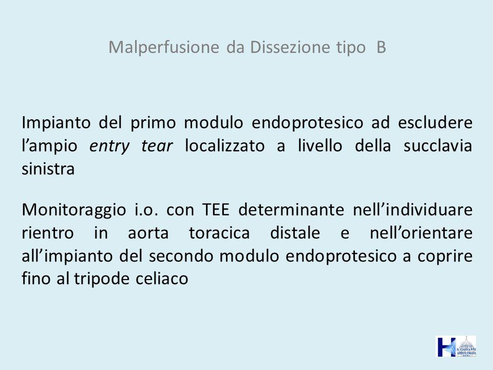Malperfusione da Dissezione tipo B Monitoraggio i.o. con TEE determinante nellindividuare rientro in aorta toracica distale e nellorientare allimpiant