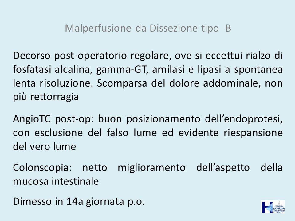 Malperfusione da Dissezione tipo B AngioTC post-op: buon posizionamento dellendoprotesi, con esclusione del falso lume ed evidente riespansione del ve