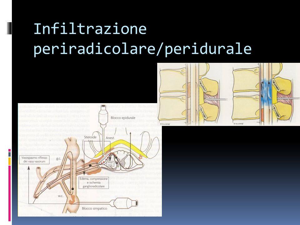 Infiltrazione periradicolare/peridurale