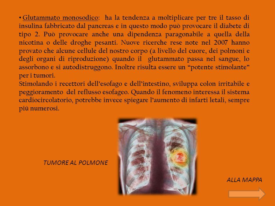 Glutammato monosodico: ha la tendenza a moltiplicare per tre il tasso di insulina fabbricato dal pancreas e in questo modo può provocare il diabete di