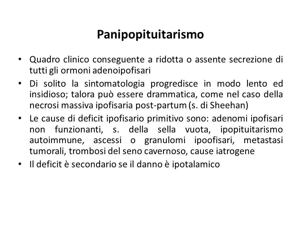 Panipopituitarismo Quadro clinico conseguente a ridotta o assente secrezione di tutti gli ormoni adenoipofisari Di solito la sintomatologia progredisc