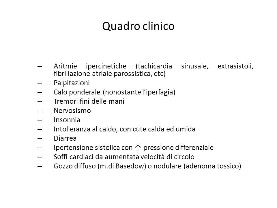 Quadro clinico – Aritmie ipercinetiche (tachicardia sinusale, extrasistoli, fibrillazione atriale parossistica, etc) – Palpitazioni – Calo ponderale (