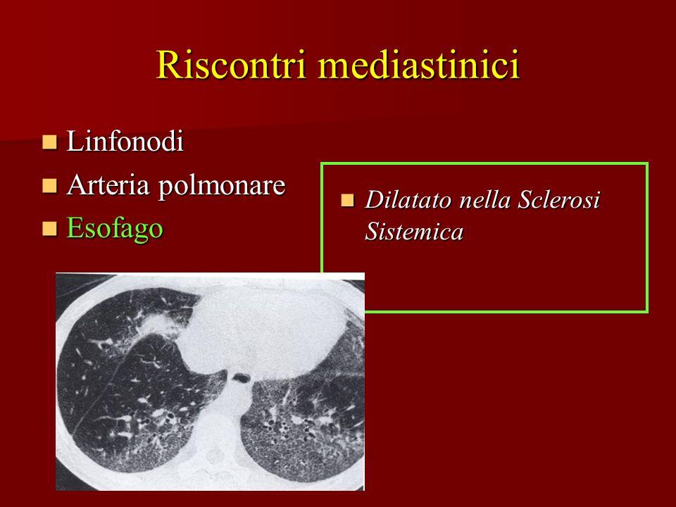 Riscontri mediastinici Linfonodi Linfonodi Arteria polmonare Arteria polmonare Esofago Esofago Dilatato nella Sclerosi Sistemica Dilatato nella Sclero