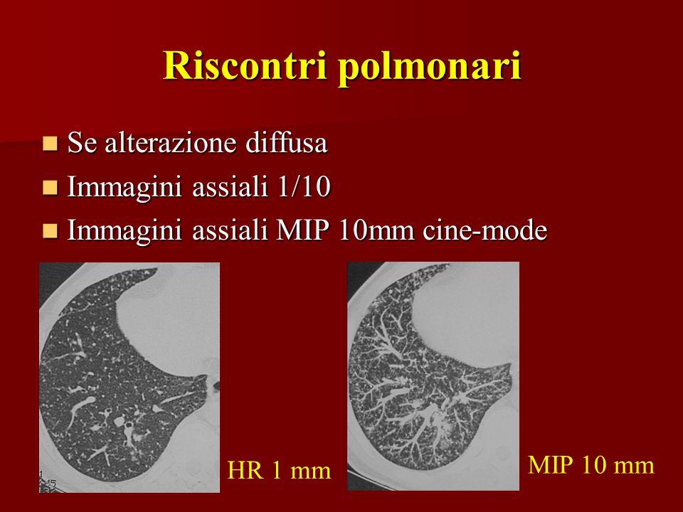 Riscontri polmonari Se alterazione diffusa Se alterazione diffusa Immagini assiali 1/10 Immagini assiali 1/10 Immagini assiali MIP 10mm cine-mode Imma