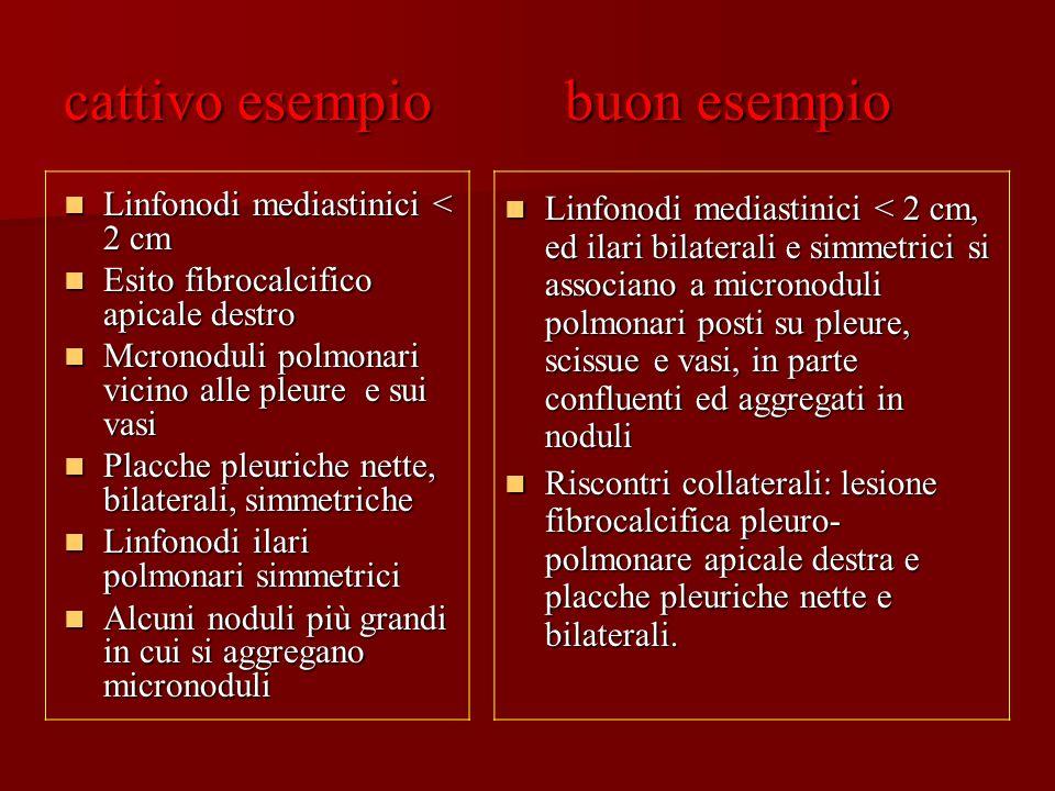 cattivo esempio buon esempio Linfonodi mediastinici < 2 cm Linfonodi mediastinici < 2 cm Esito fibrocalcifico apicale destro Esito fibrocalcifico apic