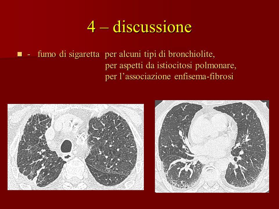 4 – discussione - fumo di sigaretta per alcuni tipi di bronchiolite, - fumo di sigaretta per alcuni tipi di bronchiolite, per aspetti da istiocitosi p