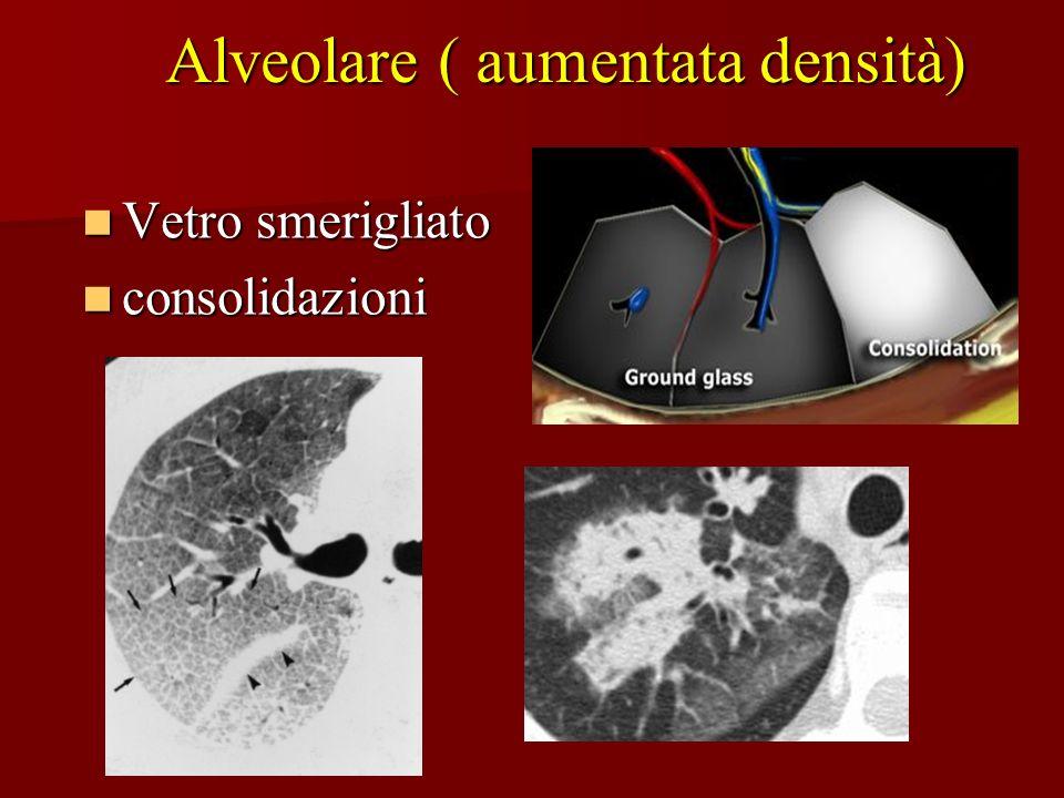 Alveolare ( aumentata densità) Vetro smerigliato Vetro smerigliato consolidazioni consolidazioni