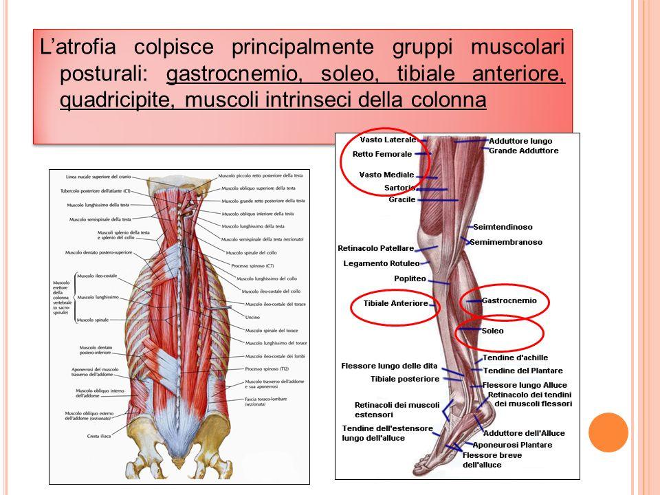 Latrofia colpisce principalmente gruppi muscolari posturali: gastrocnemio, soleo, tibiale anteriore, quadricipite, muscoli intrinseci della colonna