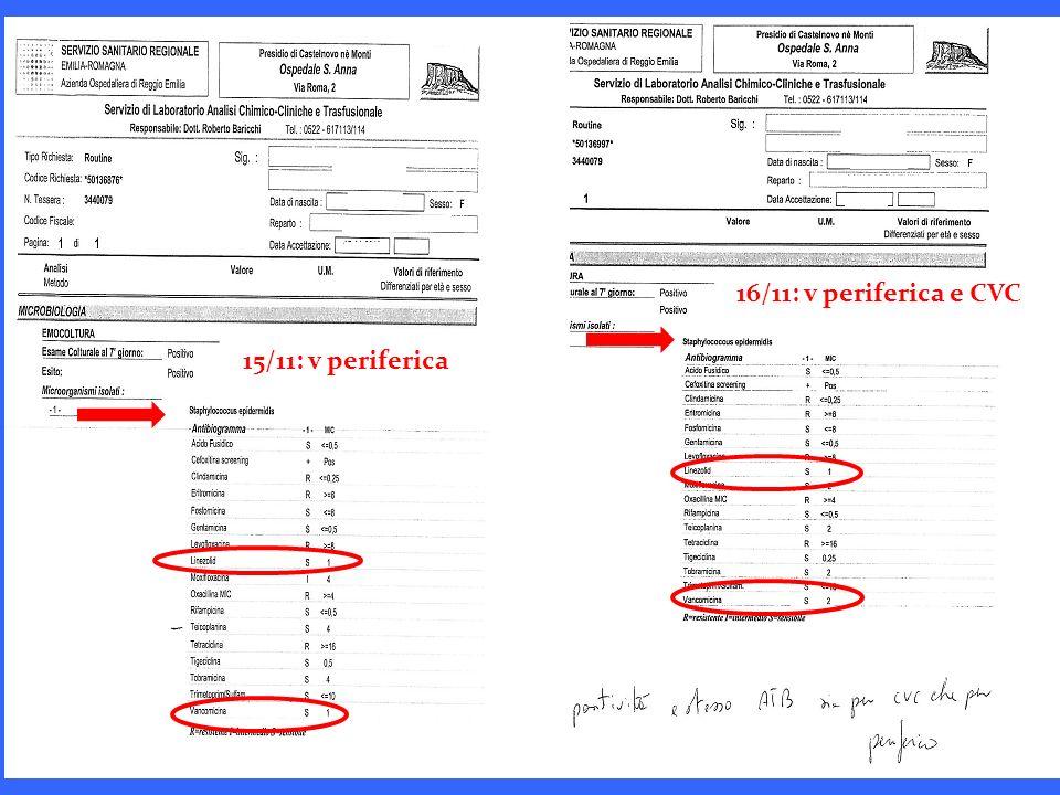 15/11: v periferica 16/11: v periferica e CVC