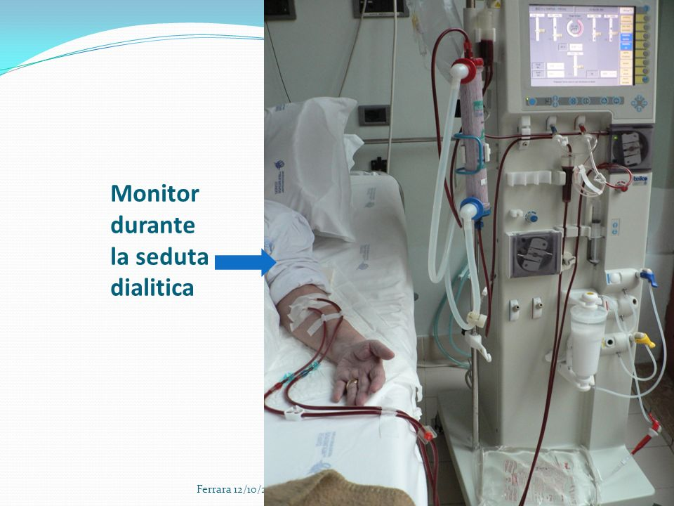 10 Monitor durante la seduta dialitica